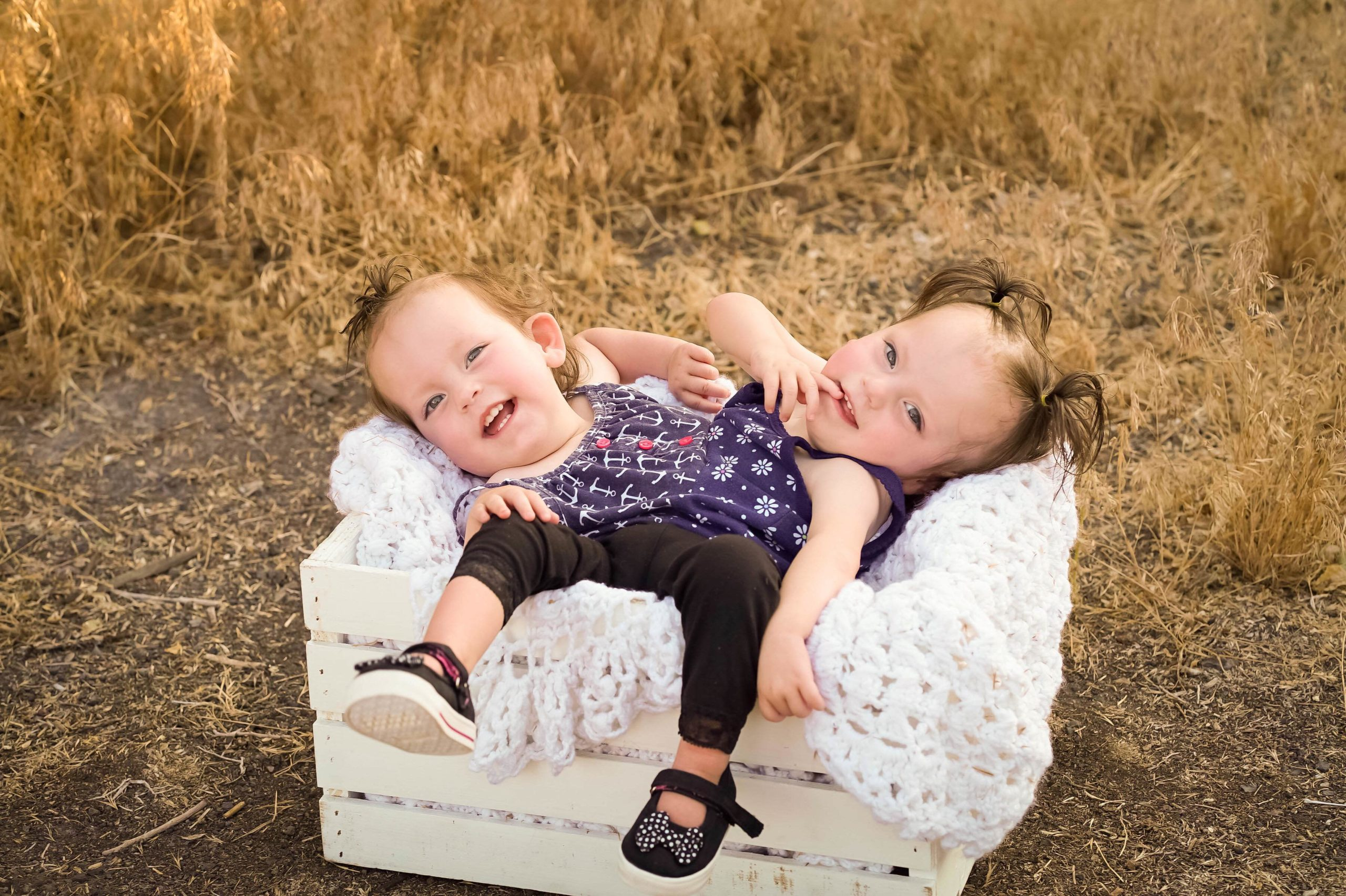 This is the third birthday for girls born as Siamese twins