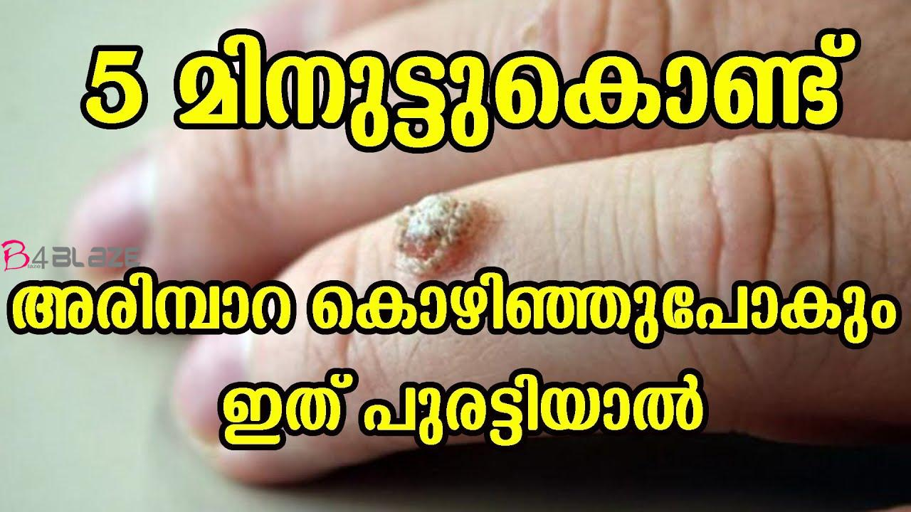 home remedies for arimbara removing